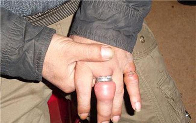 女星戒指戴太多险截肢 如何轻松去掉难去的戒指